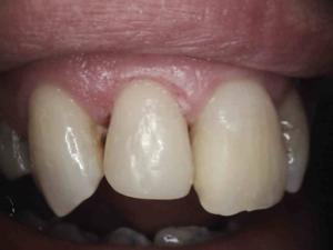 East main dental care gallery