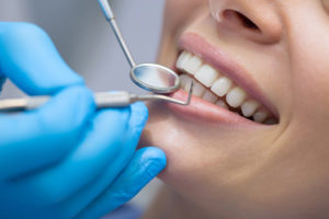 Woman getting a dental checkup, dental cleaning